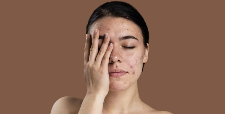 skin health and your microbiome