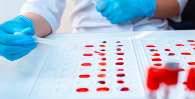 Eating For Your Blood Type: Does The Blood Type Diet Work?